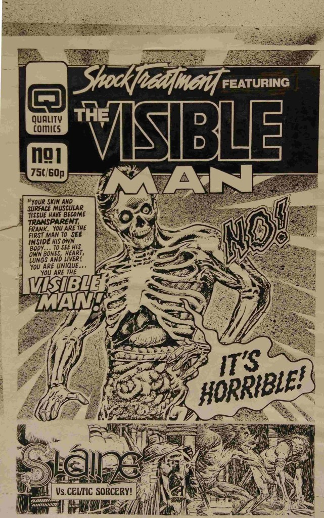 """When Dez Skinn was putting together his Quality line of 2000AD reprints, he put together several dummy covers. Here's the cover to the proposed Shock Treatment Issue One Featuring the Visible Man, one of the titles that didn't make the final line up. """"It's amazing to see the process in constructing a cover made from stats,"""" David notes. """"The ink splash in the background, the strips cut out, titles and lettering pasted on, it really is an incredible piece (in my opinion, anyway!) a lost art in a way. This would be put together in photoshop now. While not original art, it certainly is a very original piece in the long history of 2000AD."""""""